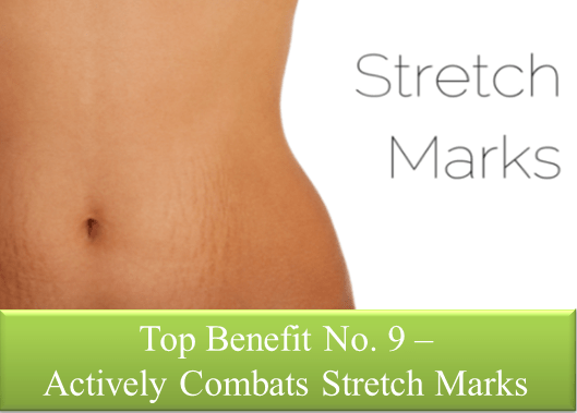 Stretch Marks Reduced