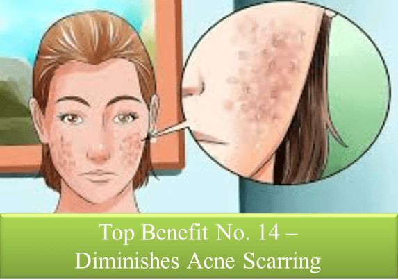 Acne Scars Diminished