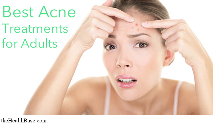 Best Acne Treatments for adults