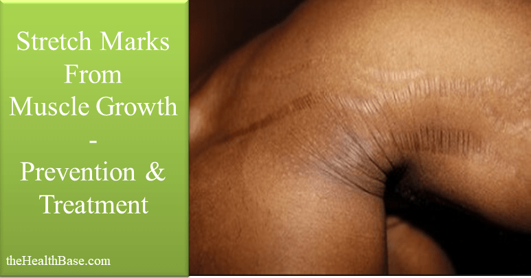 Muscle Gain Stretch Marks