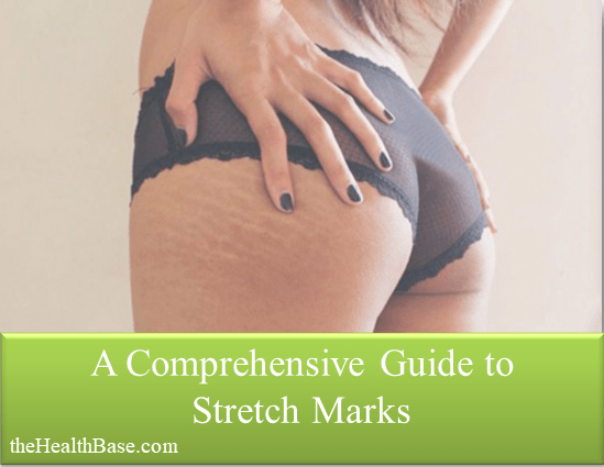 Stretch Marks Guide