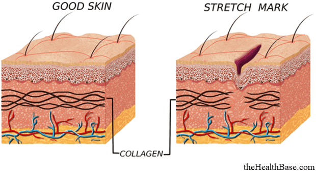 Lack of collagen results in skin tears