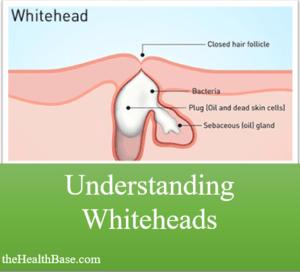 Understanding whiteheads