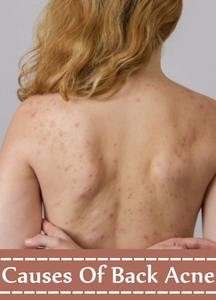 get rid of back acne in a day