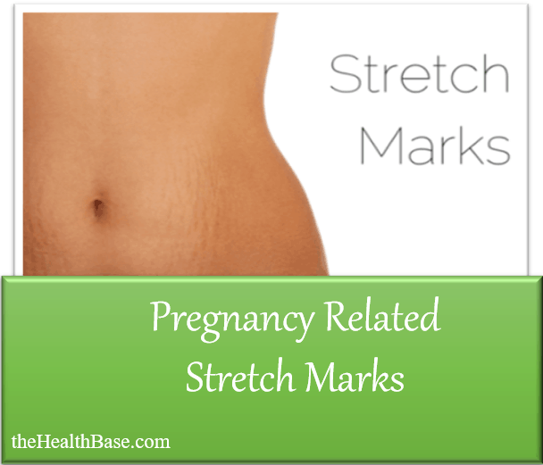 Pregnancy stetch marks