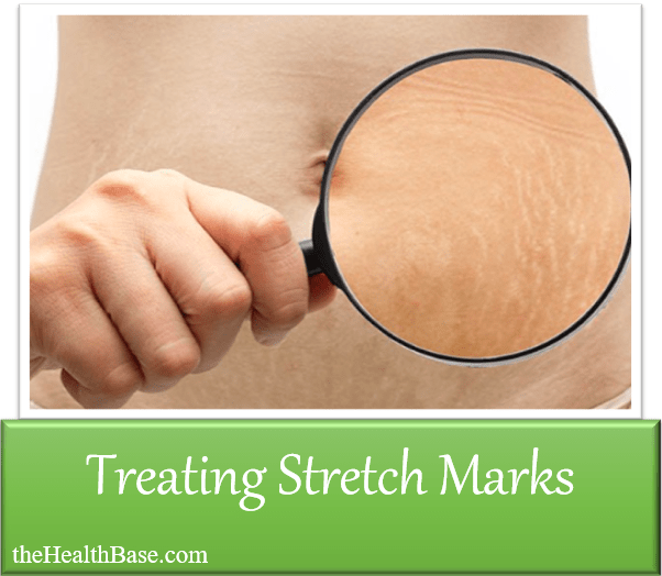 Treating stretch marks