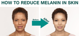 Redice melanin
