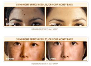 Lighten skin