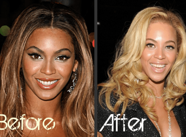 Image result for skin bleaching before and after