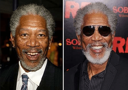 Morgan Freeman teeth