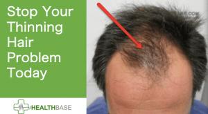 stop mens hair receding